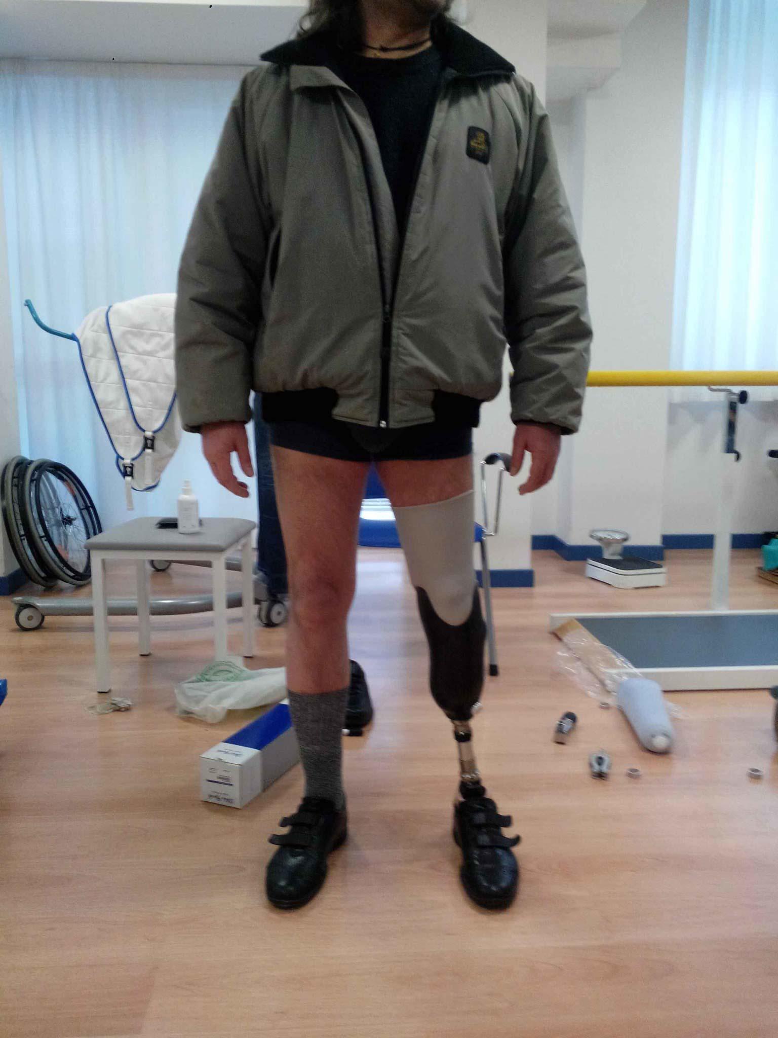 stapa3d_protesi_marcoavaro_wasp-151-1
