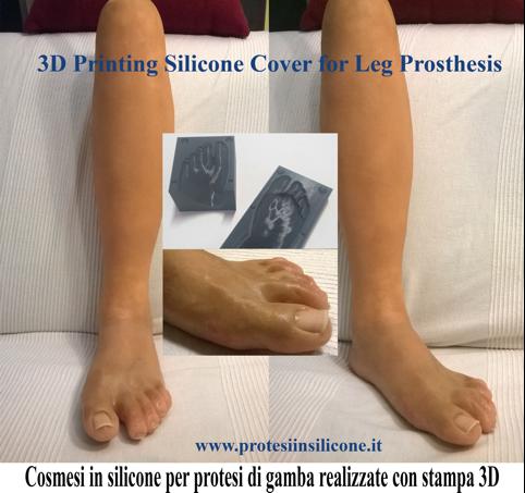 protesi Delta 2040