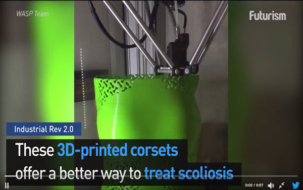 3D Printing has an answer to scoliosis