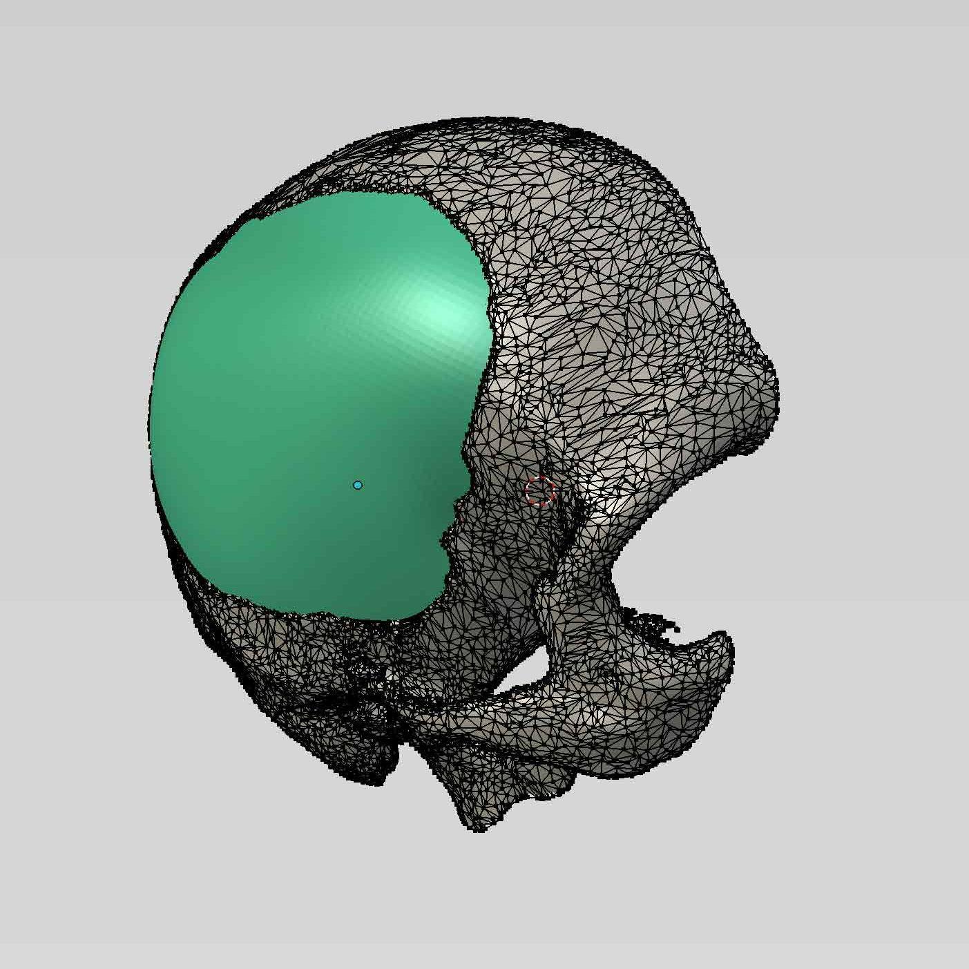 3d Printing in Medicine | WASP Med | 3D Printers | WASP