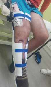 Modellazione 3D in Ortopedia Gamba