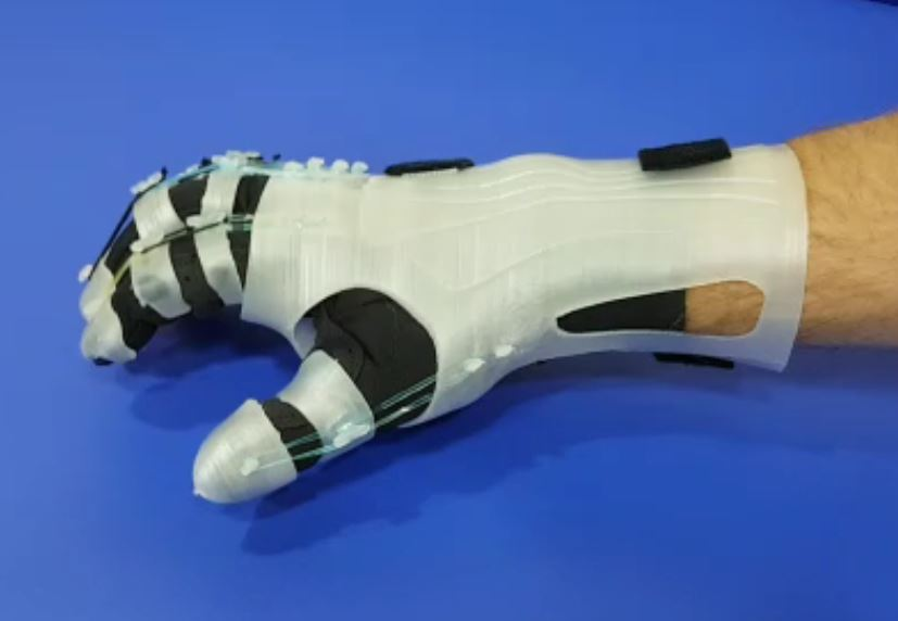 3d printed orthopedic hand devices