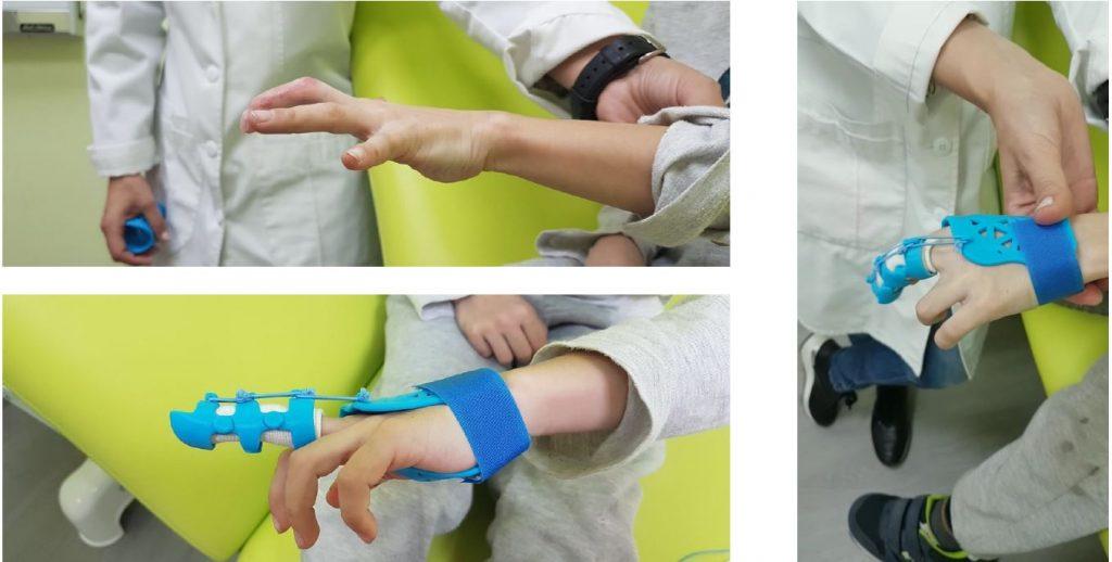 Modellazione 3D in Ortopedia Gambe Mano bimbo