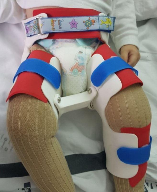 3d printed orthopedic brace for femur's fracture